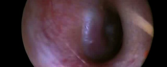 Video: Glomo timpano giugulare